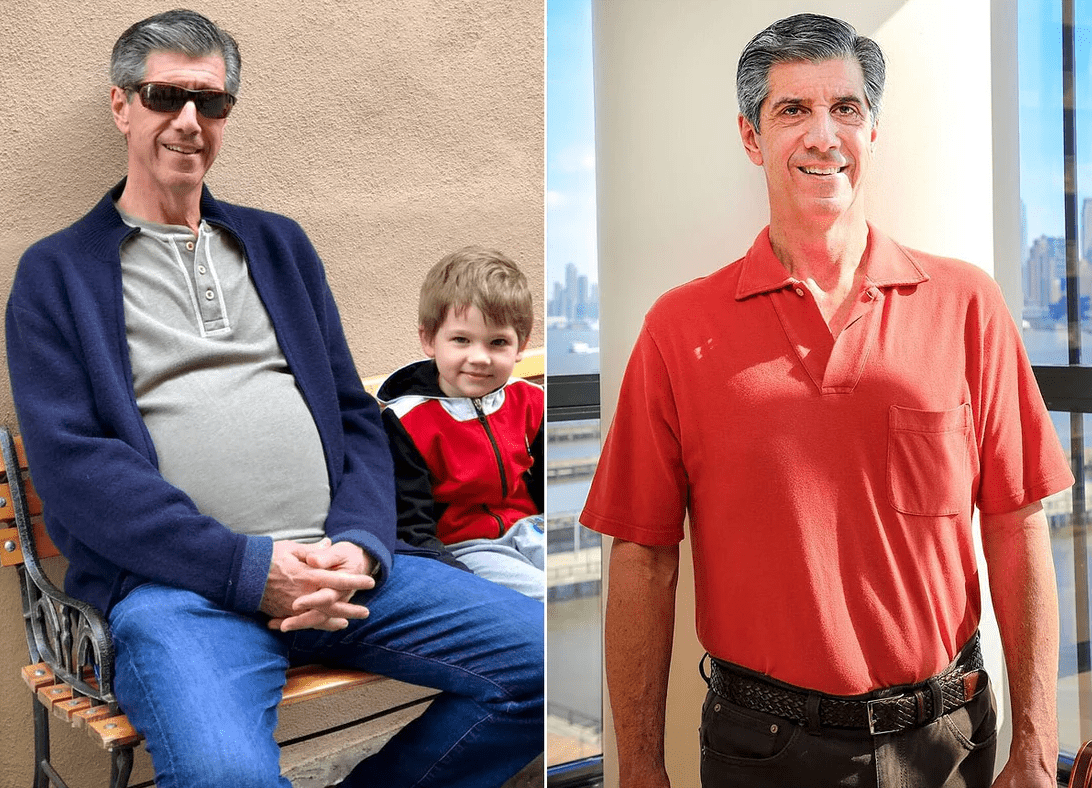 New Jersey man who couldnt lose his beer belly discovers its actually a 30pound tumor